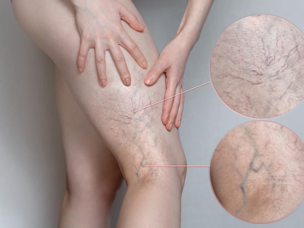 Behandeling van spataders: sclerocompressietherapie