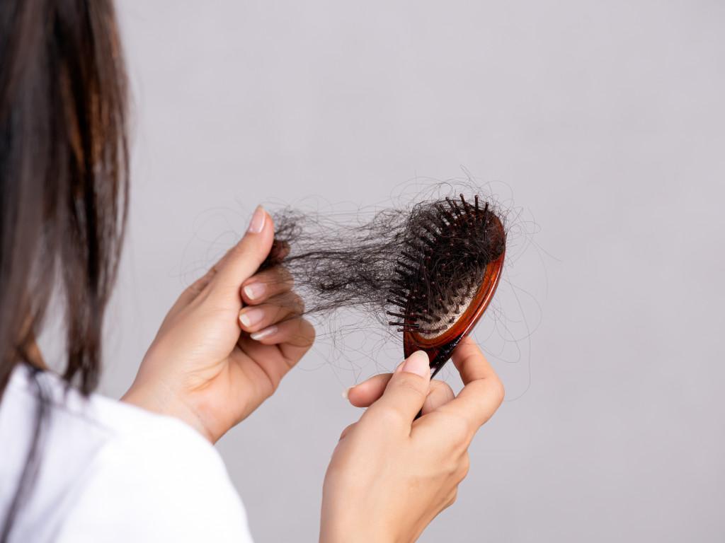 Haarziekten