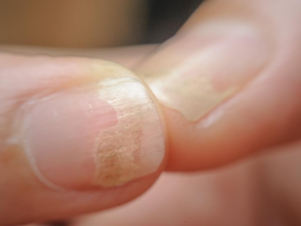 Nagelziekten