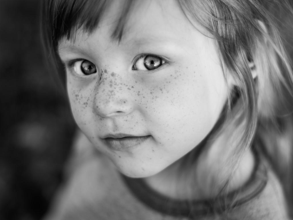 Beoordelen en opvolgen van moedervlekken (naevi) en huidkanker
